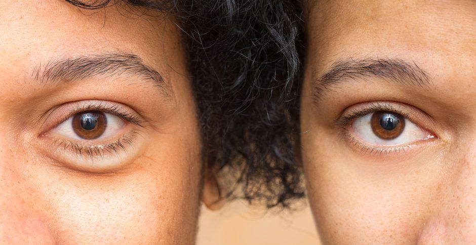 Comment éviter les rides au coin des yeux
